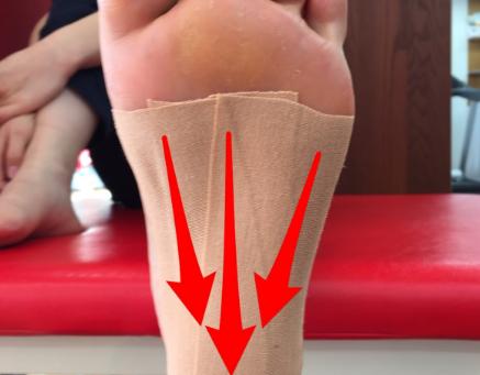 有痛性外脛骨のテーピング