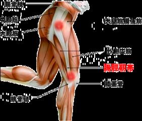 腸脛靭帯炎「ランナーズニー」