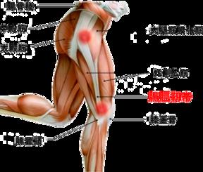 79b4e89841 腸脛靭帯炎「ランナーズニー」