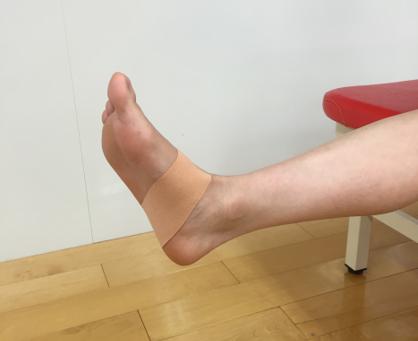 腓骨筋炎のテーピング