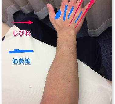 肘部管症候群とは?