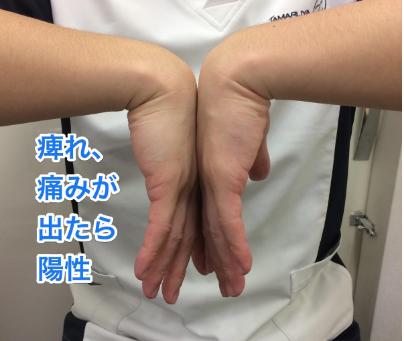 手根管症候群①