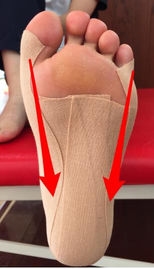 有 痛 性 外 脛骨 テーピング やり方
