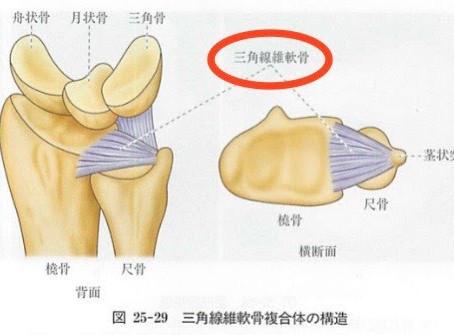 TFCC損傷(三角線維軟骨複合体損傷)
