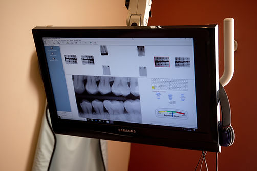 Shoreview dental screen with xray of teeth