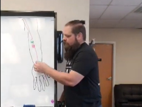 Fix Median Nerve Pain Now!