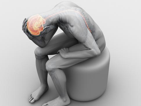 Treating Trigger Point Headaches
