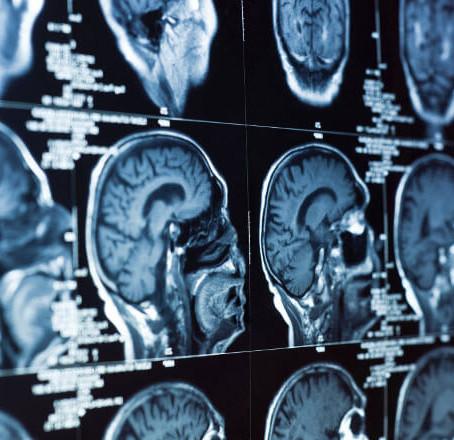 ნეიროფსიქოლოგიის ისტორია