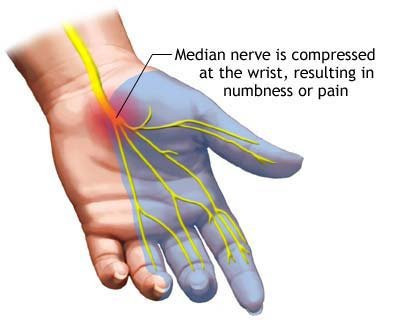 Reducing Carpal Tunnel Pain with Massage