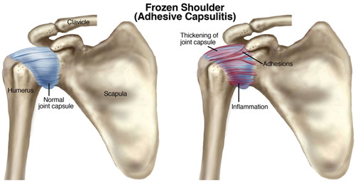 Freezing, Frozen, Thawed:Frozen Shoulder