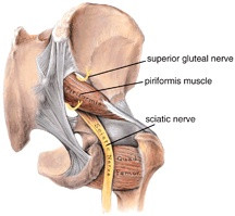 Is it Sciatica or Piriformis Syndrome?