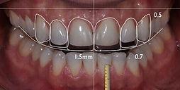 planejamento prótese dentária - dentista - zona sul e menino deus - Porto Alegre