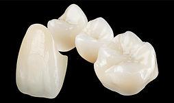 próteses de porcelana - zona sul - menino deus - dentista - porto alegre