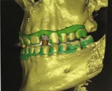 3D Scan of jaw with implant