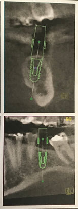 CBCT scan of dental implant