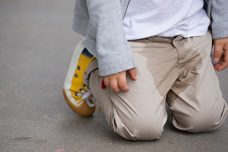 A  small toddler peeing on his pants on the street - Bed-wetting concept. Child pee on clo