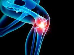 knee pain 1