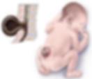 фолиевая кислота защита от врожденных дефектов