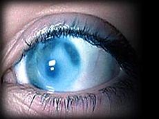 защита от глаукомы