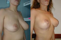 elevacion-senos