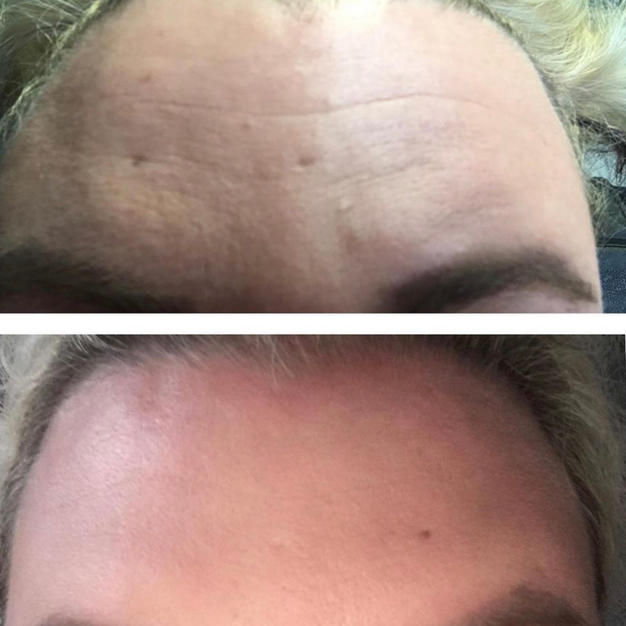 10-20 Units of Botox
