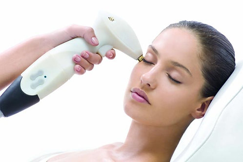 SRA Laser Facial - Package of 3 (face only)