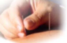 accupuncture s.jpg