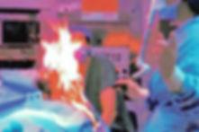 Surgery Fires, Operating room fire, hospital fires, surgery burns, hospital burns, Minnesota medical malpractice lawyers, Minnesota medical malpractice attorneys, Minnesota medical injury lawyers