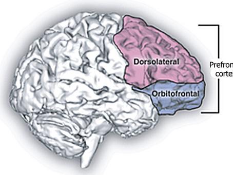 Potenziare le attività cognitive superiori aiuta a ridurre i disturbi d'ansia.