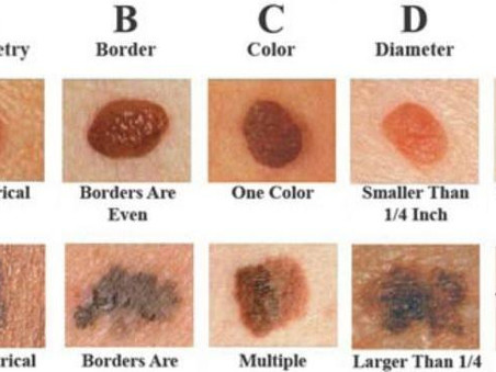 ABCDE's of Skin Care