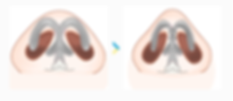 鼻頭-03.png