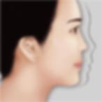 隆鼻2-03.png