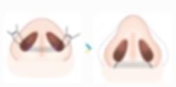 鼻翼-06.png