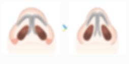 鼻翼-05.png