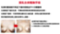 乳房下垂3-02.png