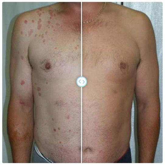 Phototherapy using Deevlin unit is available at Stein Dermatology in San Diego. VEry good results are possible with the use of NbUVB. Dr. Stein Office is located in San Diego.