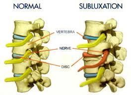 subluxation complex