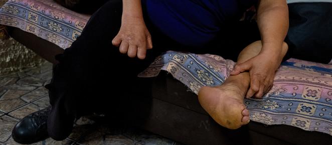 Paraná registra 550 novos casos de hanseníase e 20% de aumento entre as crianças