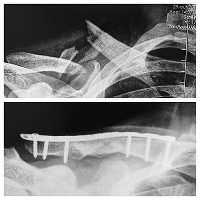 cirurgia ombro mao brasilia dr cassio especialista