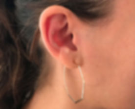 ear-acupuncture-718x581c.jpg