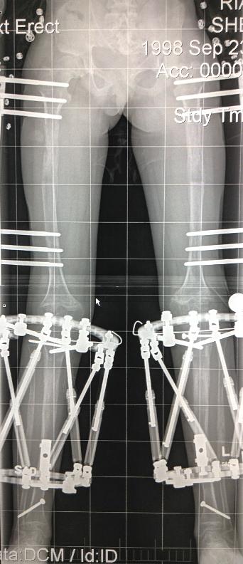 Alargamiento femur y tibia bilateral