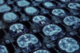 brain-imaging-data.jpg