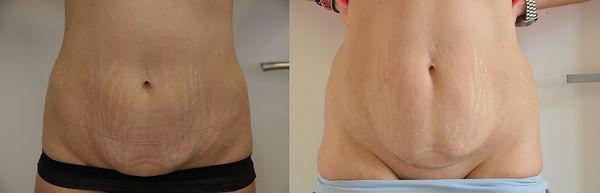 břicho před a po 3 týdnech.jpg