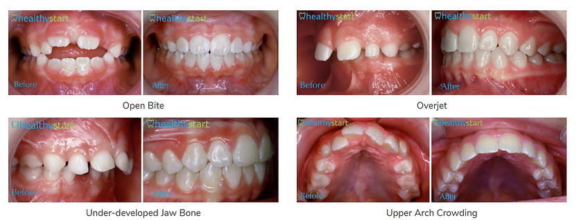 croked teeth, better teeth, natural smiles, healthy start, habit correction