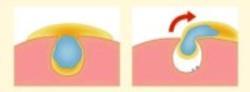 Action du nettoyant chauffant sur les pores