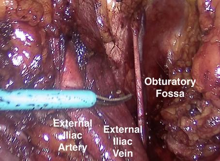 Laparoscopia Oncologica: linfadenectomia pelvica per tumore della prostata.
