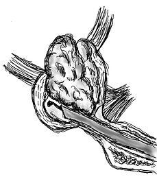 prostata adenoma beep.png