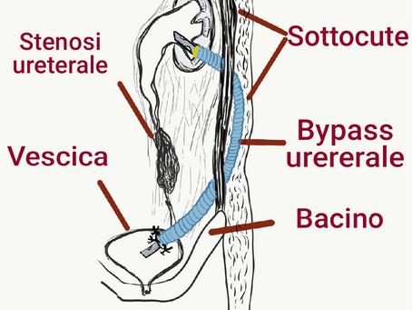 Bypass ureterale sottocutaneo per le stenosi ureterali complesse