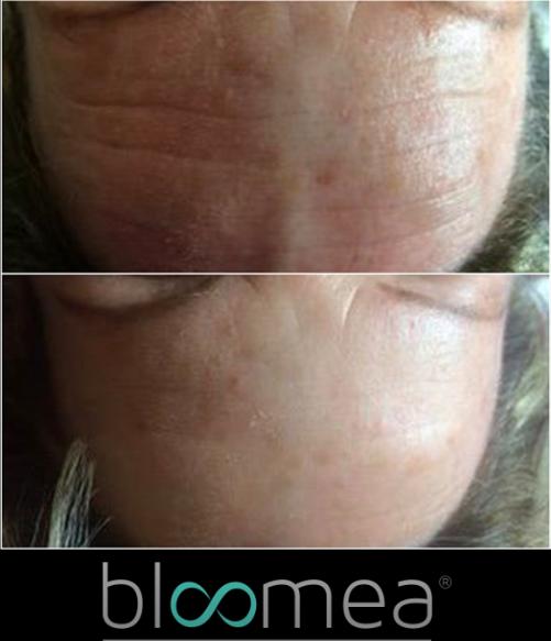 Bloomea Forehead