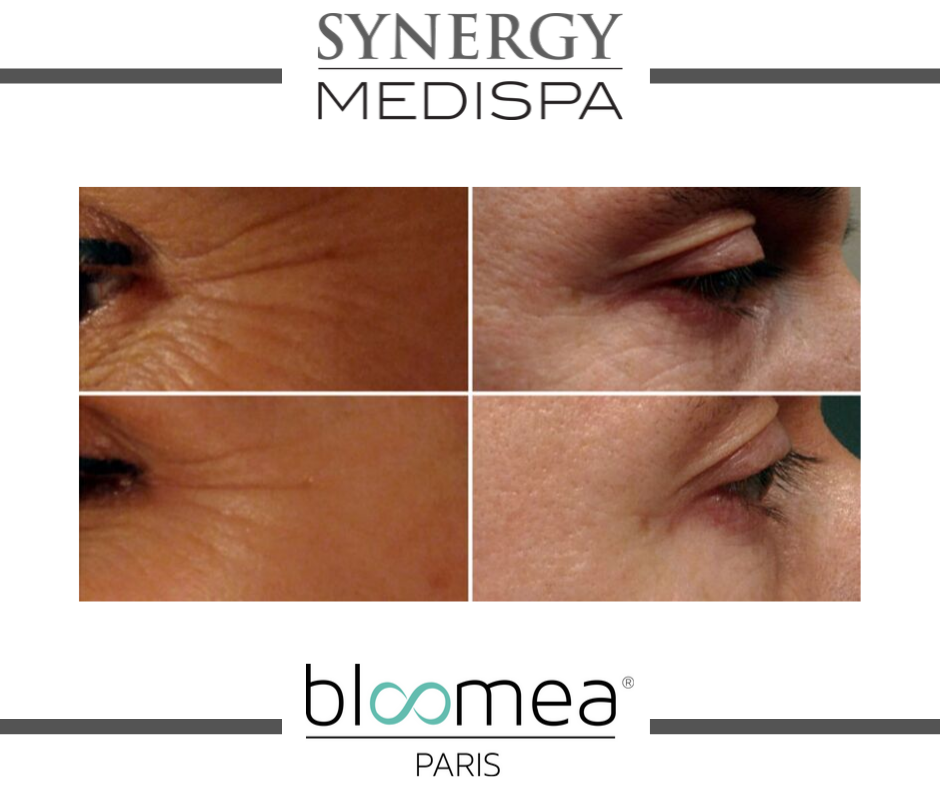 Bloomea Eyes Before & After